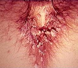 This image has an empty alt attribute; its file name is early-signs-of-genital-warts-1.jpg