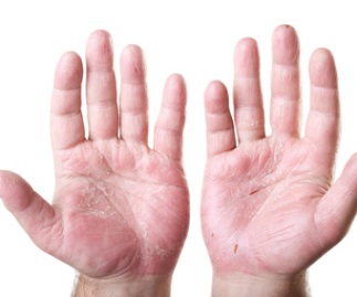 This image has an empty alt attribute; its file name is eczema-hands-1.jpg