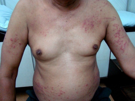 This image has an empty alt attribute; its file name is folliculitis-torso.jpg