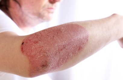 This image has an empty alt attribute; its file name is psoriasis-1.jpg