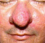 This image has an empty alt attribute; its file name is rosacea-nose.jpg
