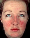 This image has an empty alt attribute; its file name is rosacea-picture.jpg