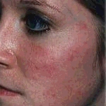 This image has an empty alt attribute; its file name is rosacea-woman-1.jpg